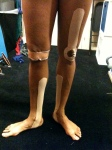 Combination of kinesiotaping and McConnell taping to help a performer