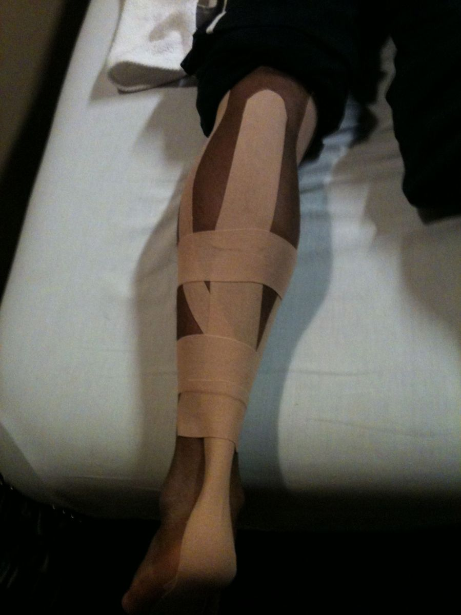 Kinesiotaping for calf/Achilles strain.