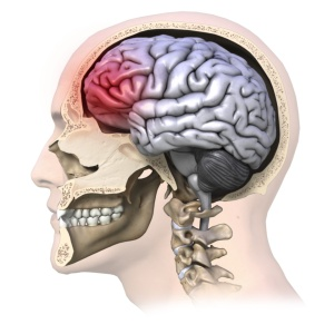 All concussions are serious injuries. Photo credit: The Physical Therapy Institute http://bit.ly/18Qpw2i